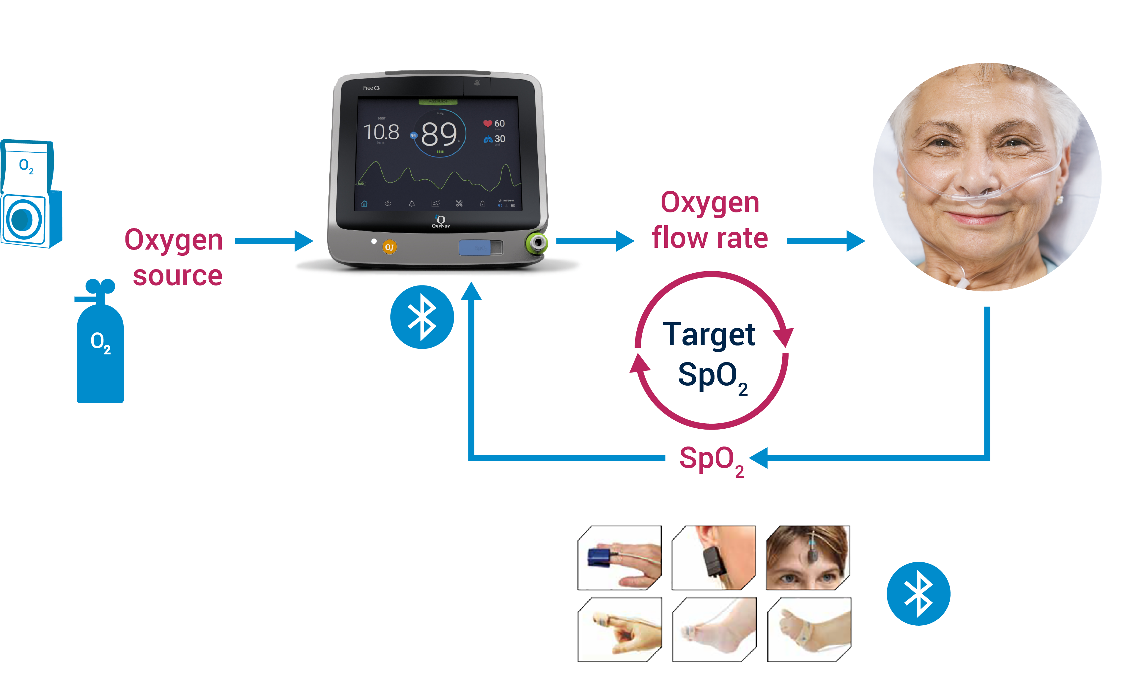 automated oxygen therapy